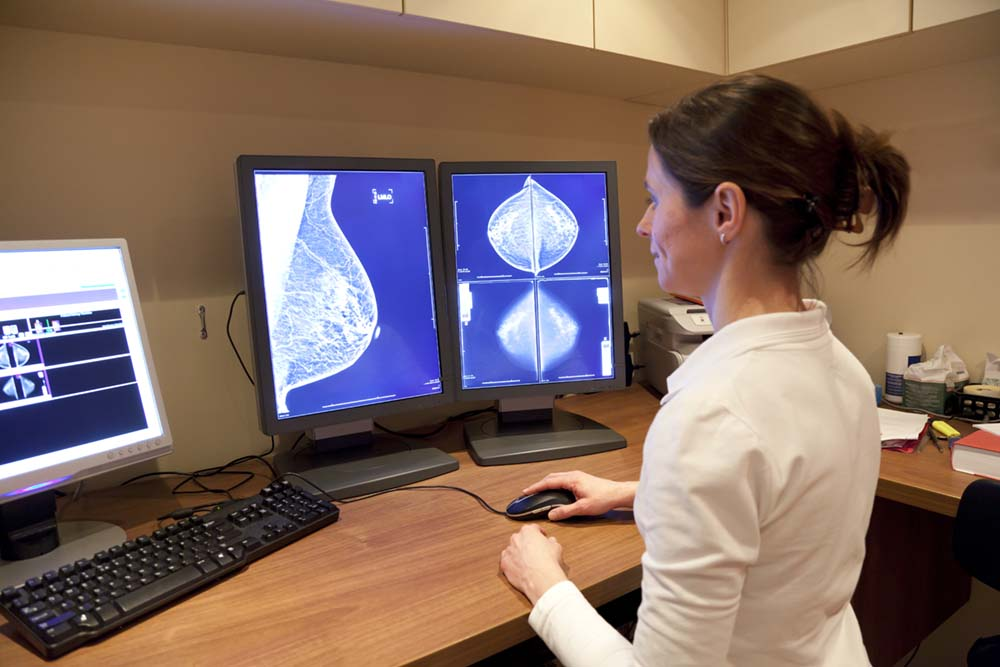 Waarde van fotobespreking voor detecteren additionele borstkanker beperkt